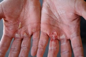 No CrossFit Gloves during a WOD