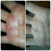 Callus Quench Hands
